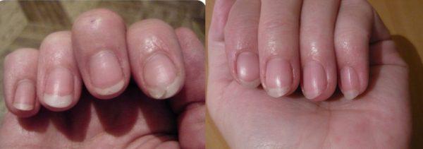 Вид ногтей до и после 2 недель приёма льняного масла