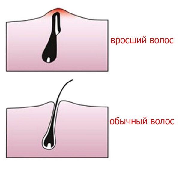 Вросший и обычный волосы