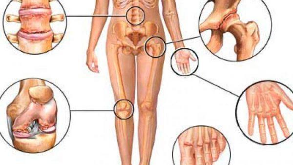 Области поражения суставов