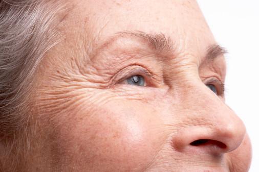 Увядающая кожа
