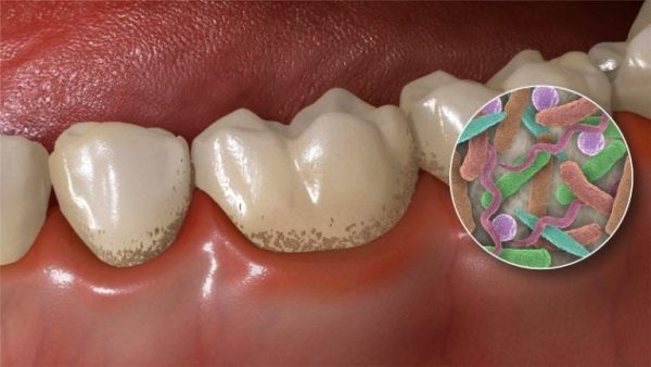 Бактериальный зубной налёт