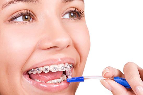 Ёршики для чистки зубов при ортодонтическом лечении