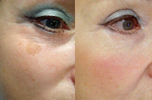фото до и после двухмесячного использования касторки