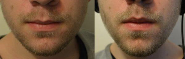 Фото до и после применения касторового масла