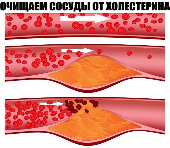 Образование холестириновых бляшек в сосудах