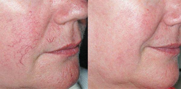 Лицо женщины до лечения купероза и после