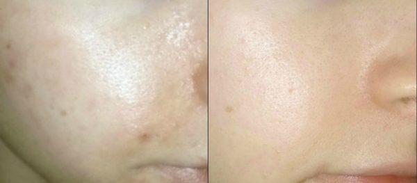 Кожа девушки до и после использования кубиков льда для лица