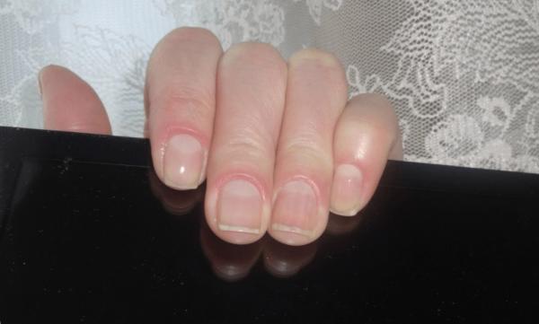 Ногти после использования ухаживающего состава
