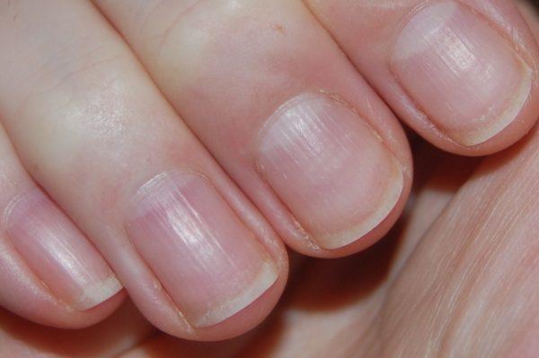 Продольные полоски на ногтях