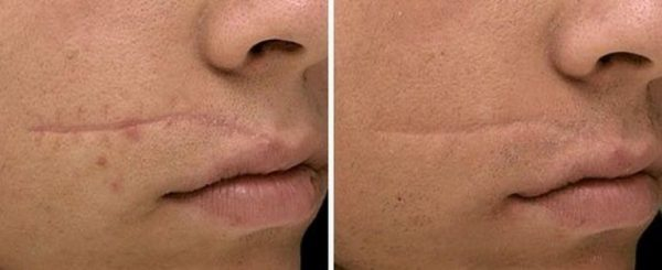Рубец на щеке до и после лечения