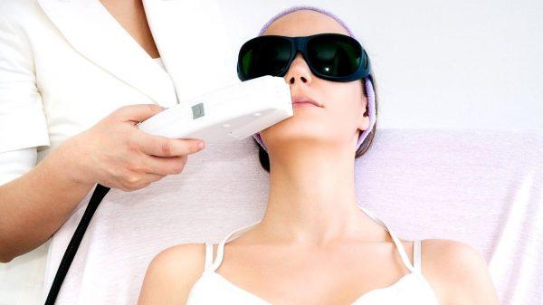 Удаление диодным лазером волос с лица у женщины
