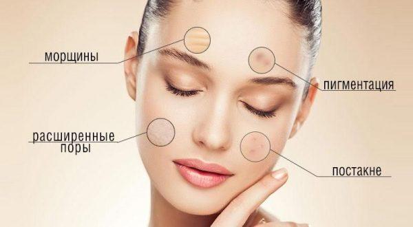 увеличенные участки кожи с различными недостатками на лице