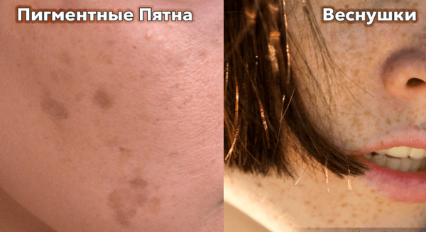 Веснушки и пигментные пятна на лице
