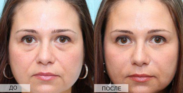 Лицо до и после блефаропластики
