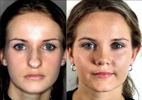 Корректировка носа гормональными препаратами