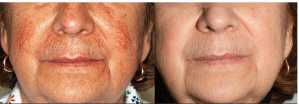 Лазерная коррекция купероза: фото до и после