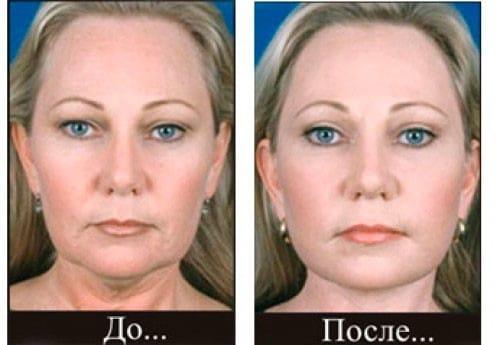 Лицо до и после дермотонии