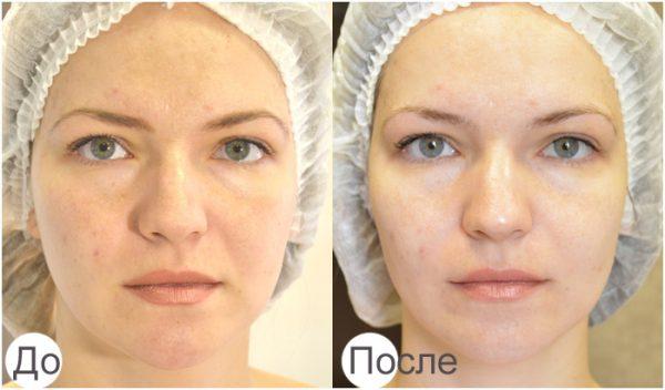 Лицо до и после карбокситерапии