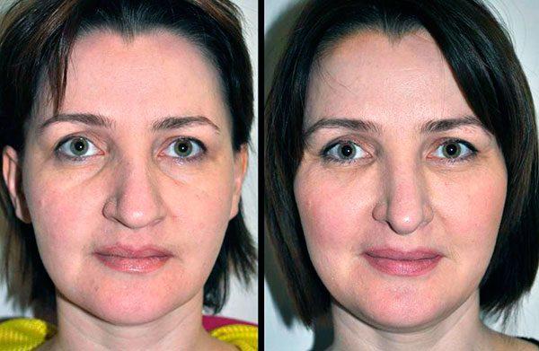 Лицо до и после липофилинга