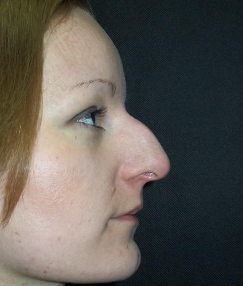 Нос с сильной горбинкой