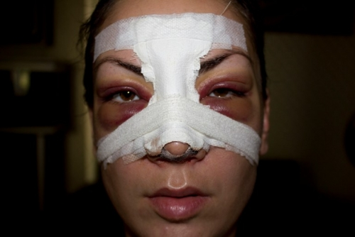 Повязка на носу после операции