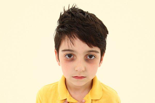 Тёмные круги под глазами у ребёнка