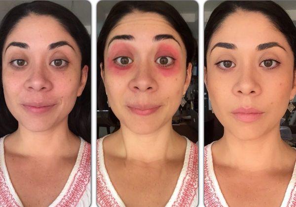 Этапы маскировки кругов под глазами
