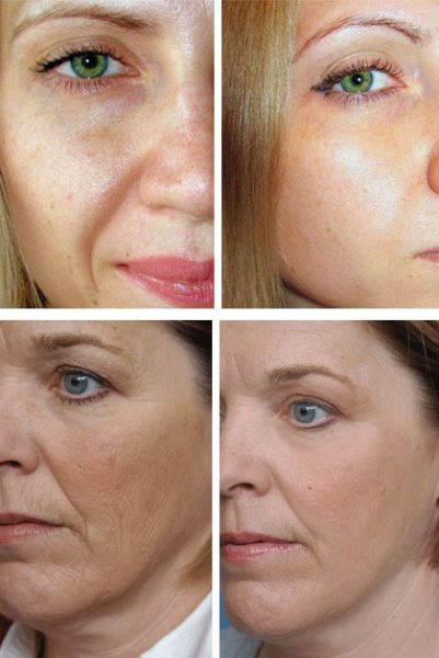 Фото до и после микротоковой терапии