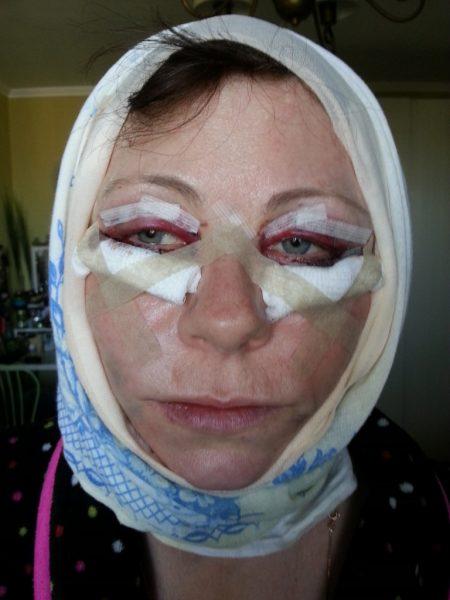 Лицо после пластической операции