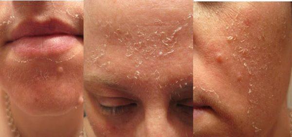Шелушение кожи после пилинга