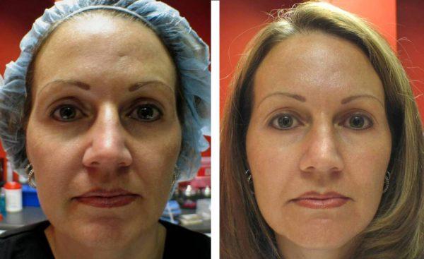 До и после озонотерапии
