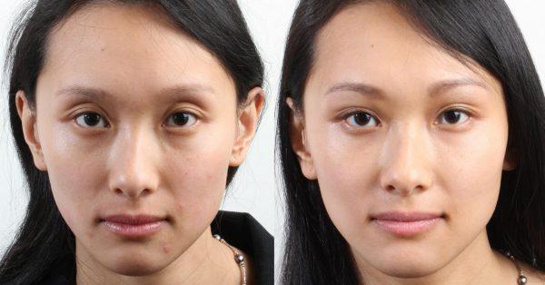 До и после введения филлеров под кожу век