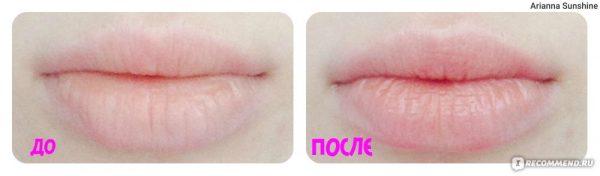 Фото губ до и после использования масла ши