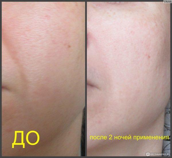 Фото носогубных складок до и после применения масла ши