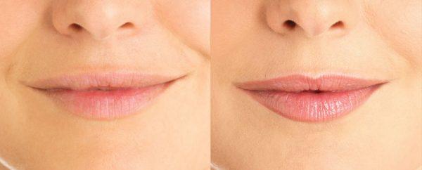 Губы в омолаживающем макияже