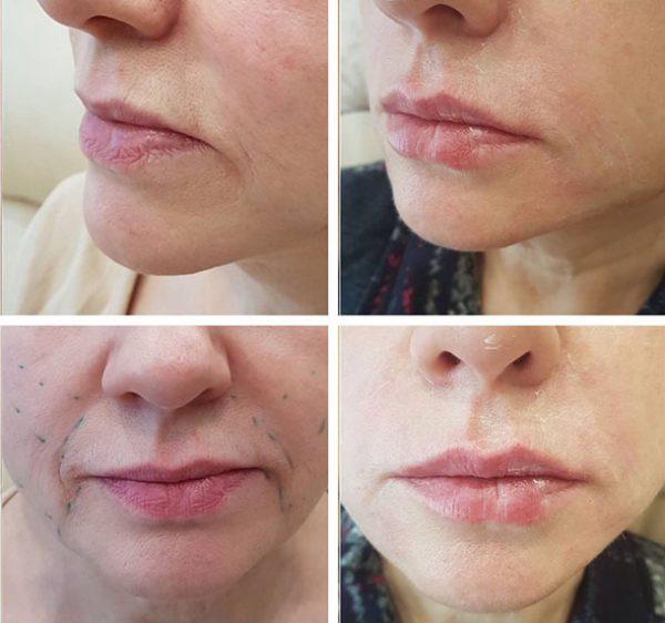 Фото нижней части лица до и после ботулинотерапии