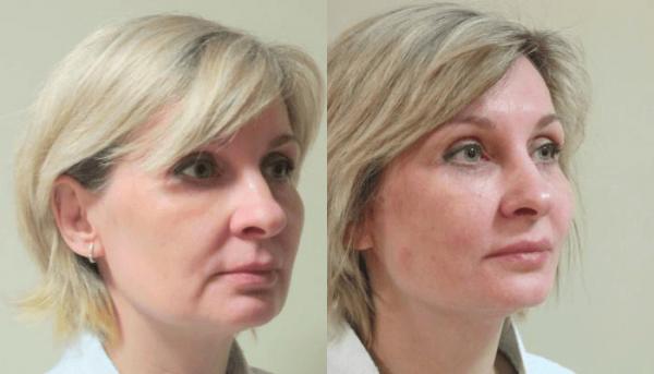 Фото лица до и после нитевого лифтинга