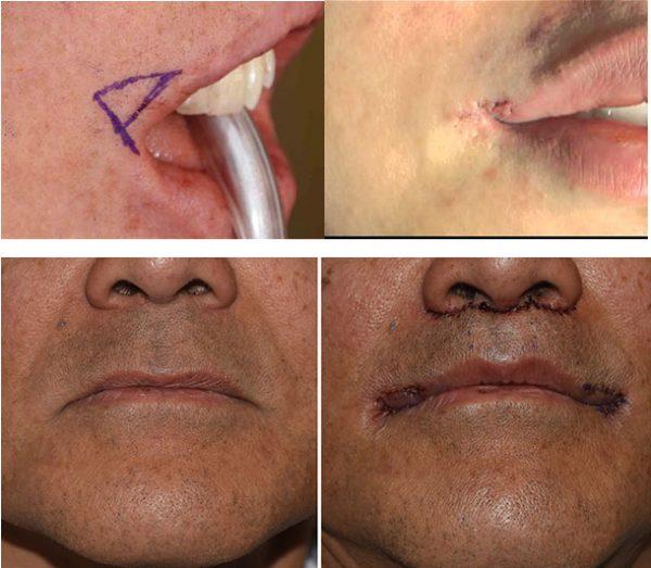 Фото нижней части лица до и после корнер-лифта