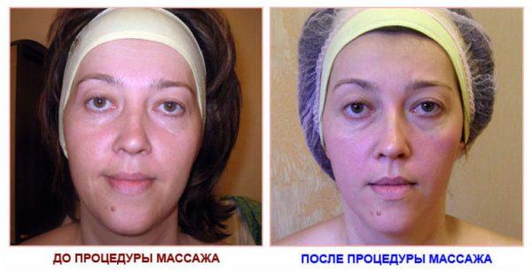 До и после лимфодренажа