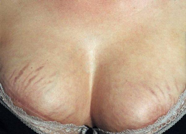 Стрии на груди