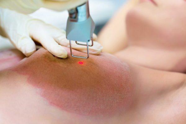 Фракционный фототермолиз груди