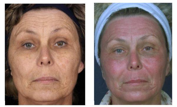 Лицо пациентки непосредственно после процедуры