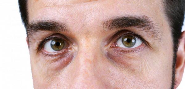 Мужчина с мешками под глазами