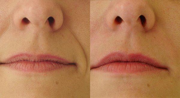 До и после векторного лифтинга носогубных складок