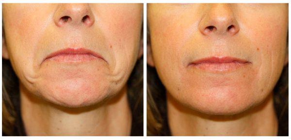 До и после векторного лифтинга губ