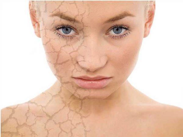 Половина женского лица с сухой кожей, вторая половина — с нормальной