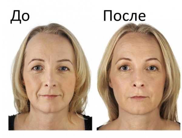 До и после фотоомоложения лица