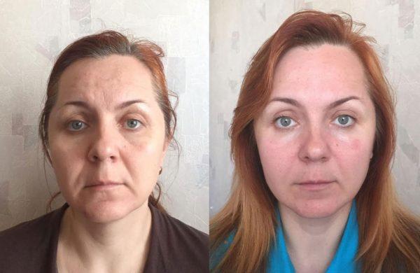 До и после курса массажа
