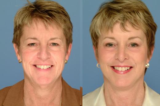 До и после броулифтинга
