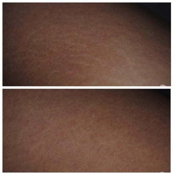 Кожа девушки до и после использования порошка бадяги против растяжек